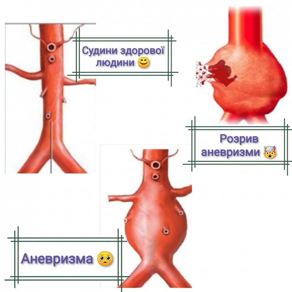 Схематичне зображення розвитку аневризми аорти
