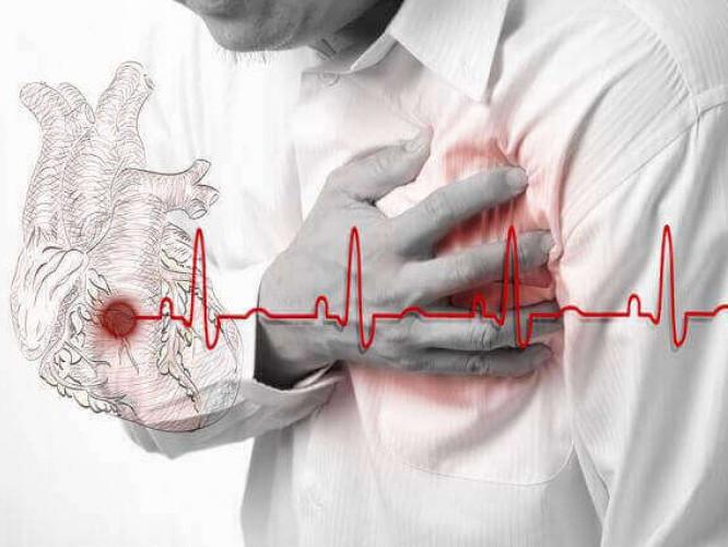 Ковельські лікарі рятували пацієнта у якого трапився інфаркт